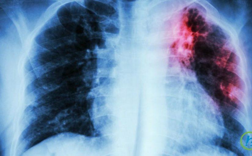 В Новороссийске стали чаще выявлять больных туберкулезом