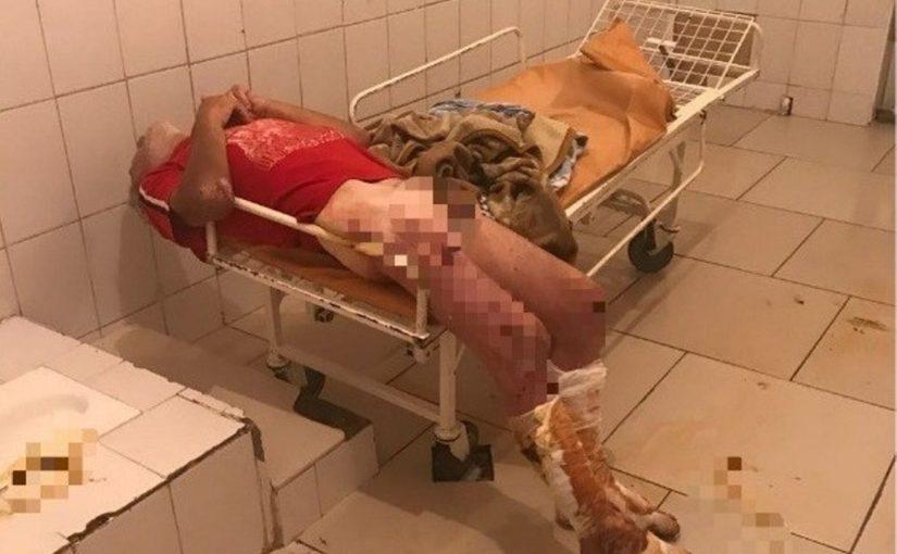 В Новороссийске медики отмыли, одели, накормили бездомного пациента и… получили град упреков